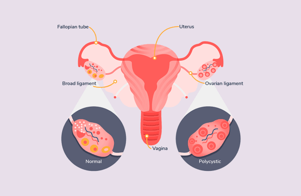 Increased Prevalence of Irregular Periods and Polycystic Ovary Syndrome in Women's and its Treatments