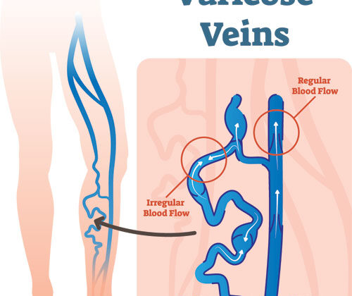 What are the surgical procedures that work to get rid of Varicose Vein Treatment?